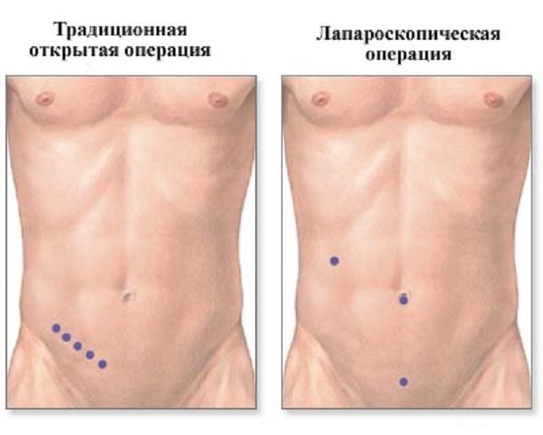 проколы при операциях на теле человека