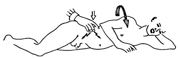 симптом Ситковского