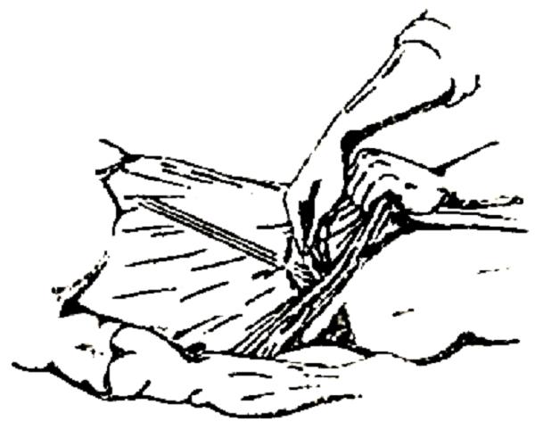 Симптом Воскресенского